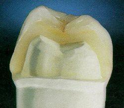 Zahnkrone aus Vollkeramik