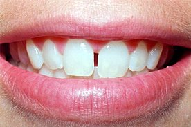 Die Zahnlücke, die zwischen den Schneidezähnen, wird als Diastema bezeichnet. Diese kann mit Veneers oder Lumineers behandelt werden.