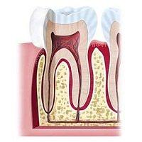 Die Pulpa ist mit ihren Blutgefäßen und Nerven das Versorgungszentrum eines Zahns.