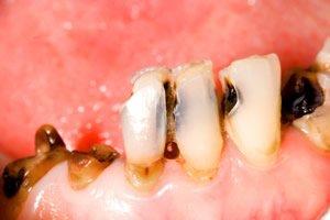 Karies und Entzündungen im Mund vorbeugen