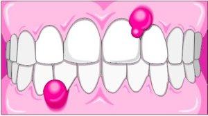 Entzündung am Zahnfleisch