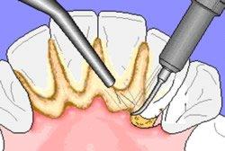 Durch Plaque und Zahnstein ist das Gleichgewicht in der Mundhöhle gestört