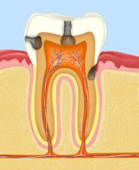 Die Folgen trockener Mundschleimhaut kann unter Umständen auch Karies sein.