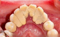 Von Bakterien besiedelter Belag an den Zähnen