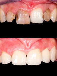 Bei Rissen, Zahnverfärbungen und großen Zahnlücken eignen sich Keramikschalen sehr gut zur Verblendung.